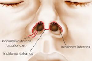 cirugia-nariz-incisiones