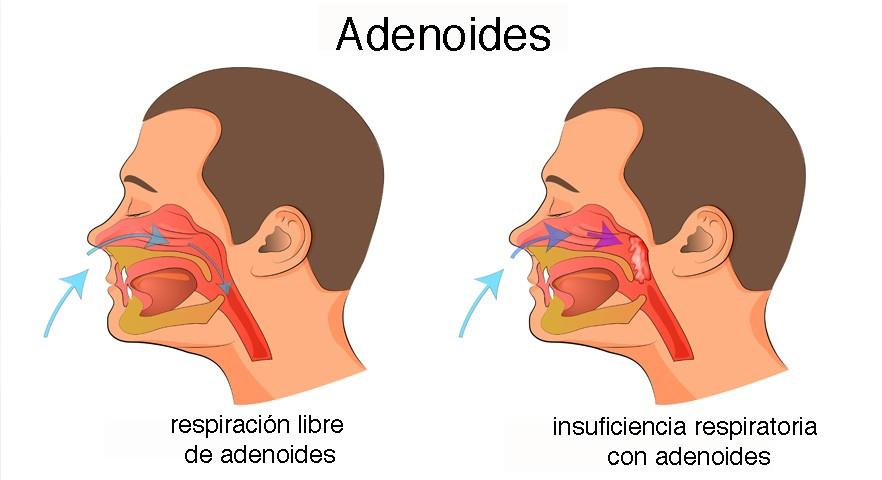Vegetaciones o adenoides