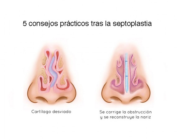 5-consejos-septoplastia