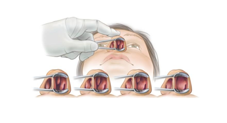 cornetes-nasales2